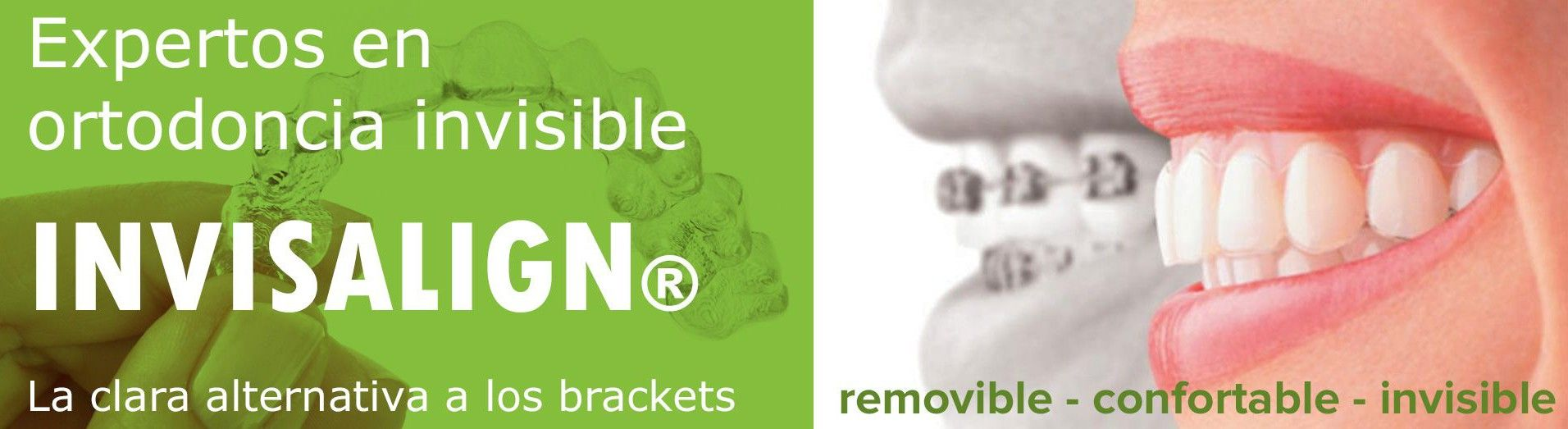 Invisalign Cordoba Clinica Dental Ventosa Sanchez