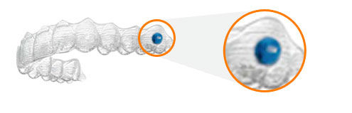 Ortodoncia-Invisible-para-niños-en-Córdoba-Alineadores