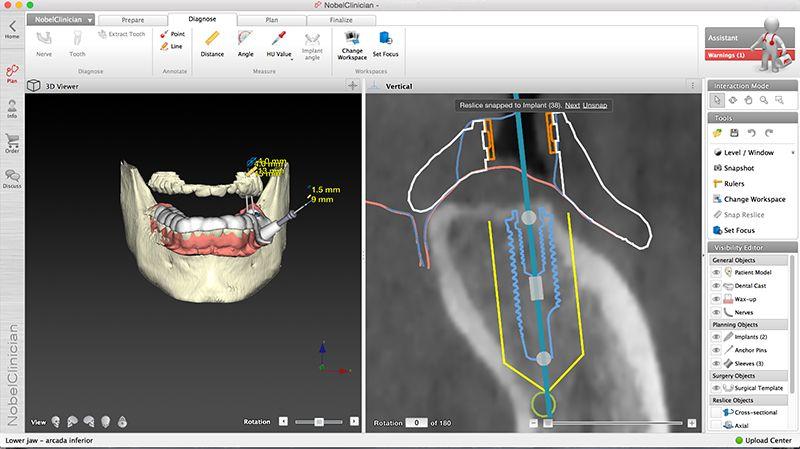 Implantes Dentales Nobel Clinician