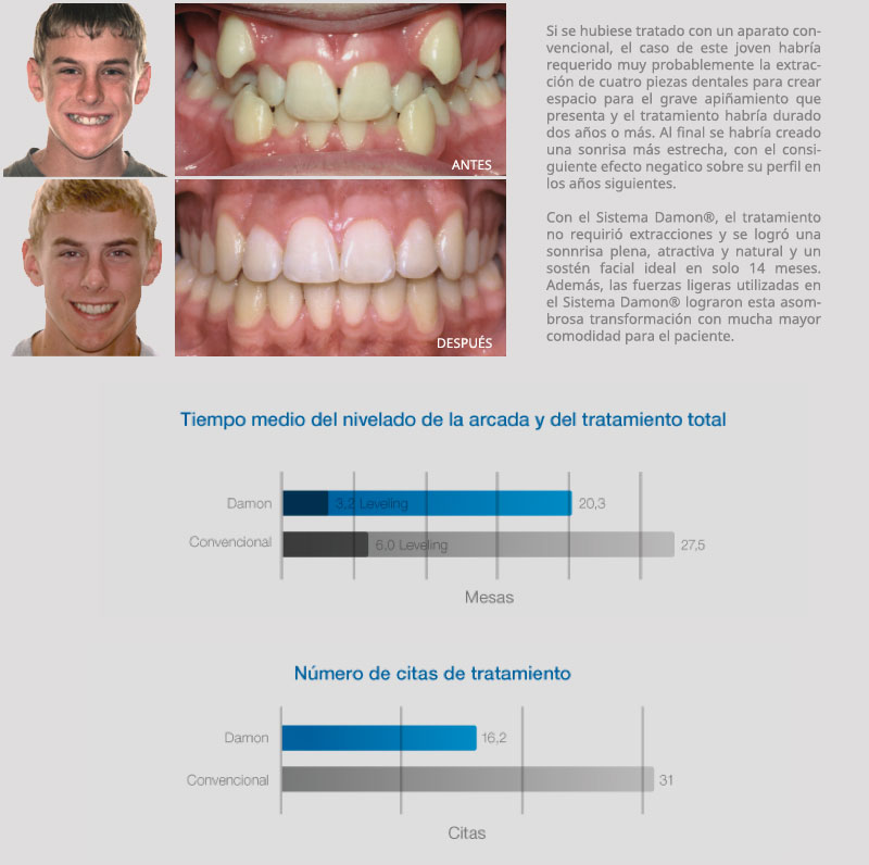 Tabla Comparativa Damon