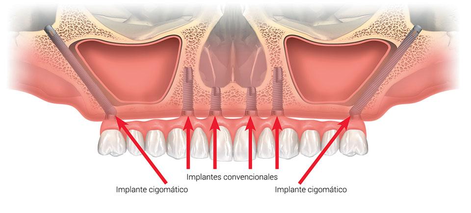 Implantes-Cigomáticos-Maxilofacial-Ventosa-Sánchez-Córdoba