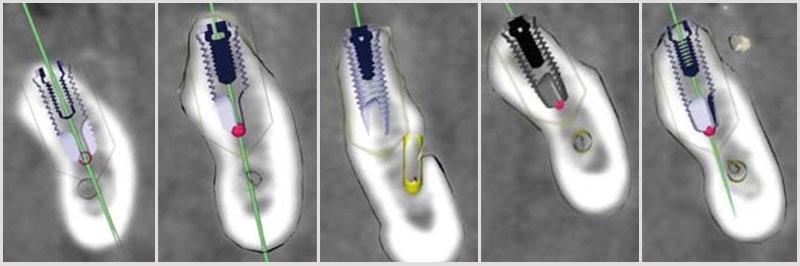 Imagen de Implantes