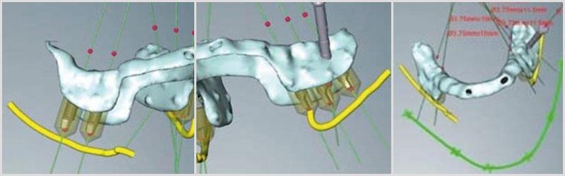 Imagen Implantes