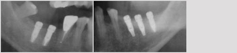 Radiografía Implantes