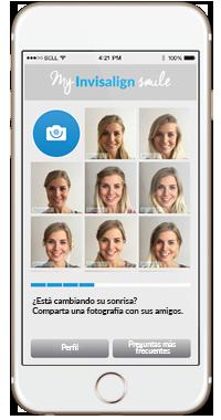 My Invisalign Smile - Dentistas Ventosa & Sánchez Córdoba