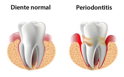Periodontitis. La enfermedad de la encías (Piorrea)