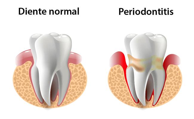 Periodontitis-Clínica-Ventosa-Córdoba