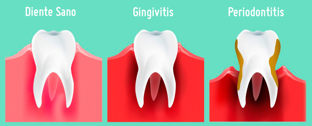 Periodontitis-Gingivitis-Diente-Sano-Clínica-Ventosa-Córdoba